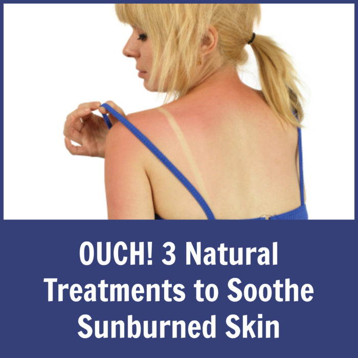 OUCH! 3 Natural Treatments to Soothe Sunburned Skin